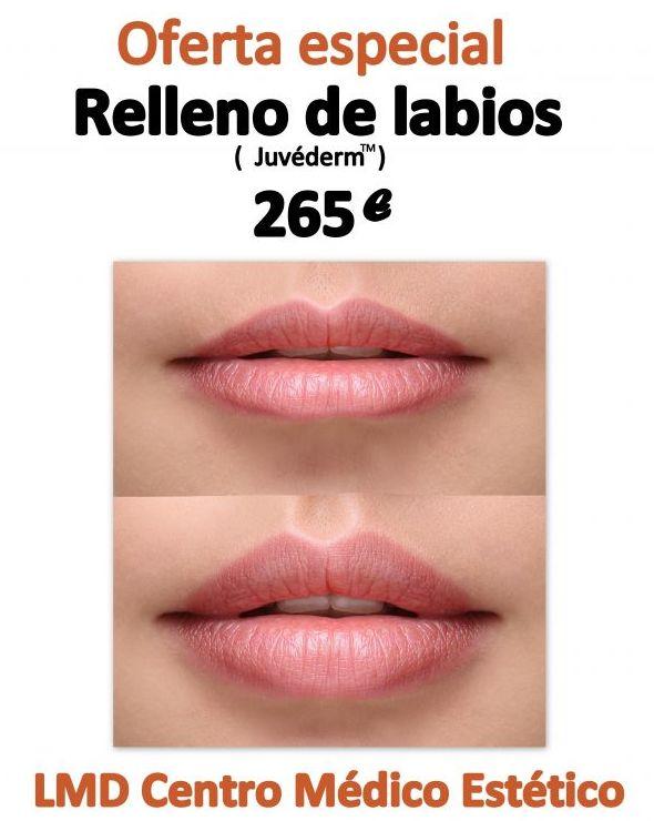 Aumento de labios con ácido hialurónico.