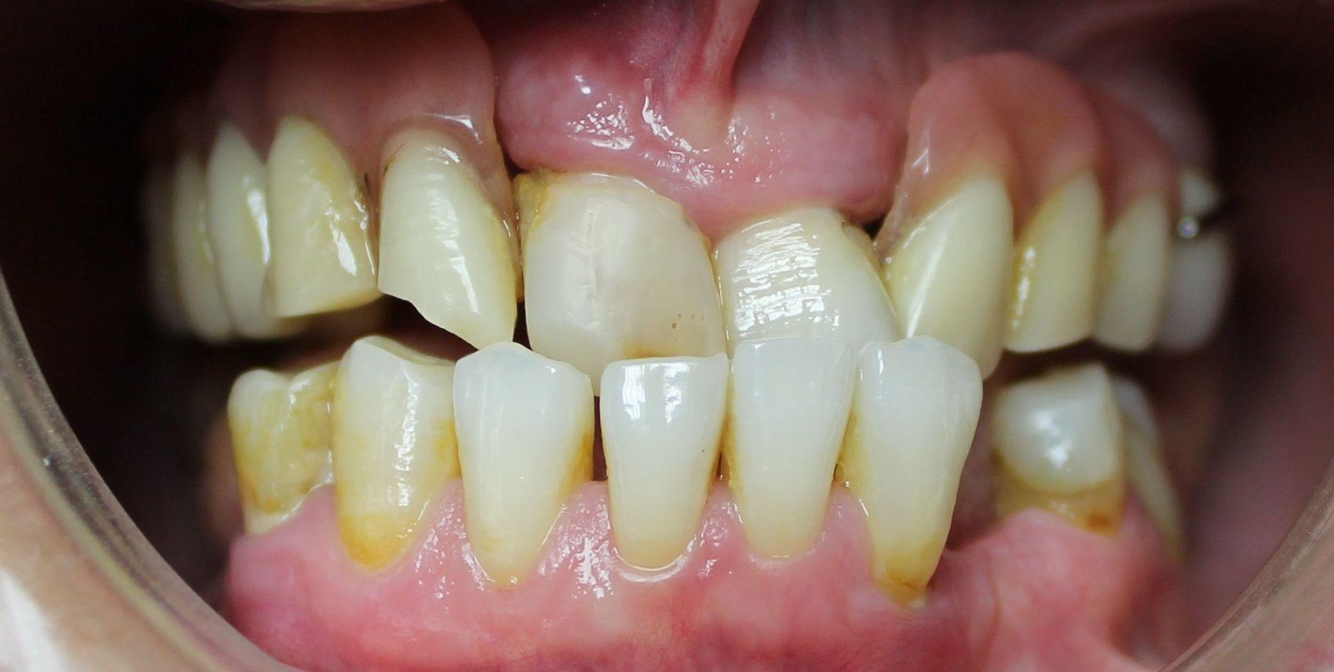 Foto 22 de Clínicas dentales en O Milladoiro | Clínica Implanteoral Milladoiro