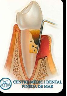 PERIODONCIA: Tratamientos  de Centro Médico y Dental Pineda