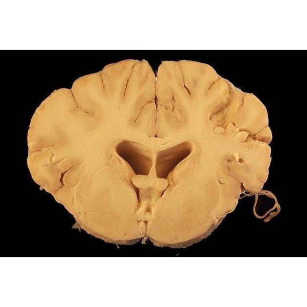 Distintos problemas neurológicos: Especialidades de Neurología de Lainez Andrés, J.M