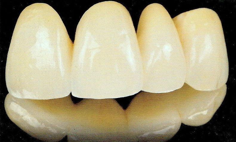 Coronas dentales: Tratamientos dentales de Clínica Dental Flores