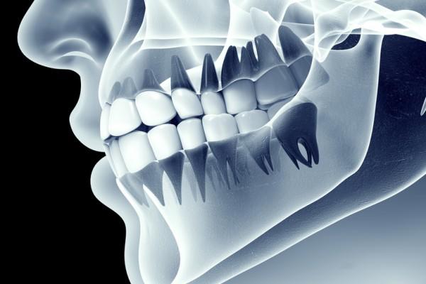 Cirugía Dental: Tratamientos y tecnología  de Clínica Dental Los Milagros
