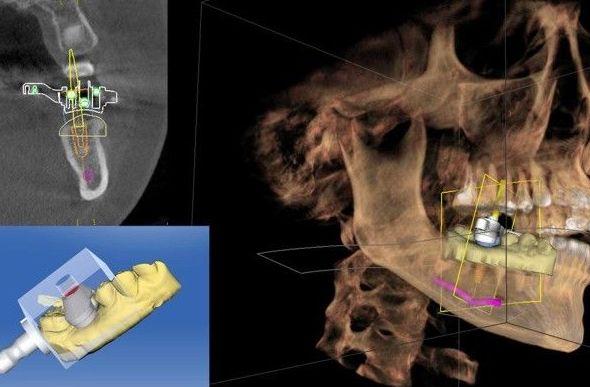 Cirugía Guiada: Tratamientos y tecnología  de Clínica Dental Los Milagros