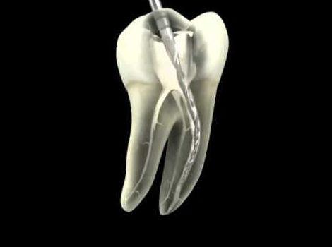 Endodoncia Rotatoria: Tratamientos y tecnología  de Clínica Dental Los Milagros