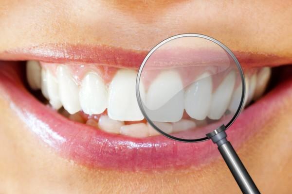 Periodoncia: Tratamientos y tecnología  de Clínica Dental Los Milagros