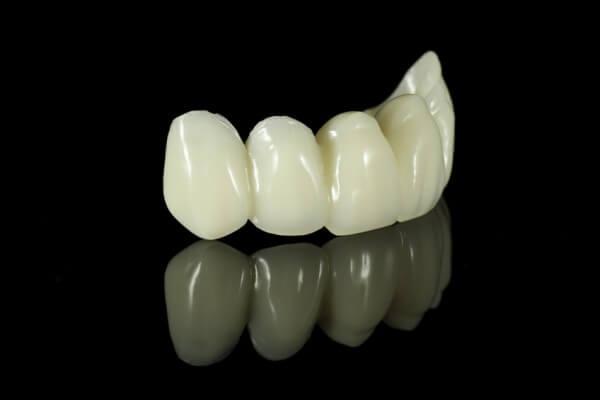 Prótesis Dentales: Tratamientos y tecnología  de Clínica Dental Los Milagros