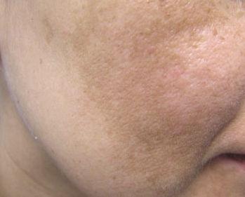 Rejuvenecimiento y manchas  : Tratamientos de Magdalena Callejón Instituto de Belleza Babor