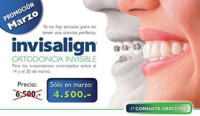 ortodoncia invisible fuenlabrada invisaling