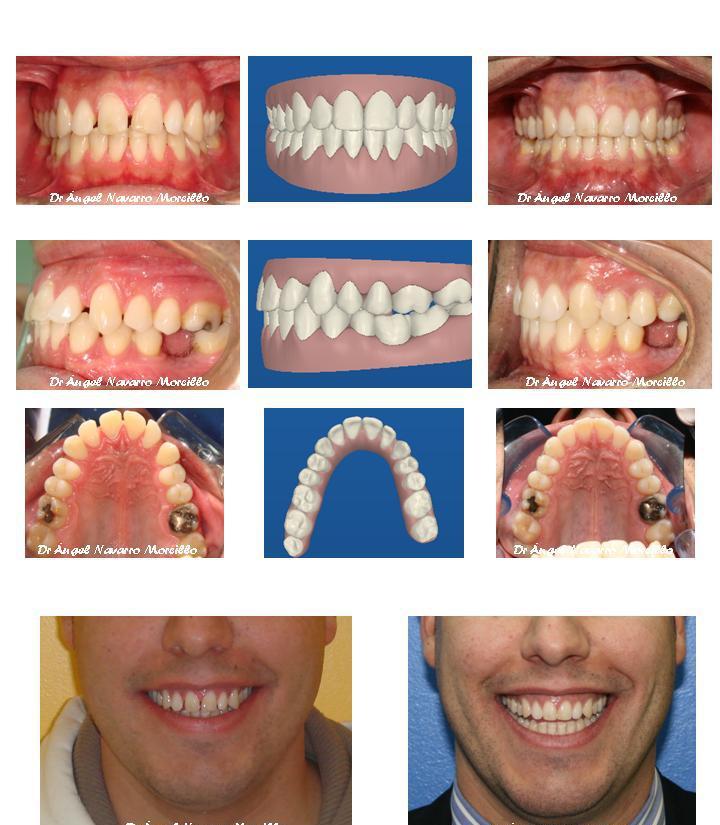 Caso con Ortodoncia Invisaling o Ortodoncia invisible