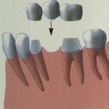 ¿Tengo hueso para colocar implantes?: Especialidades de Clínica Dental Medicalia Fuenlabrada, tus dentistas de confianza