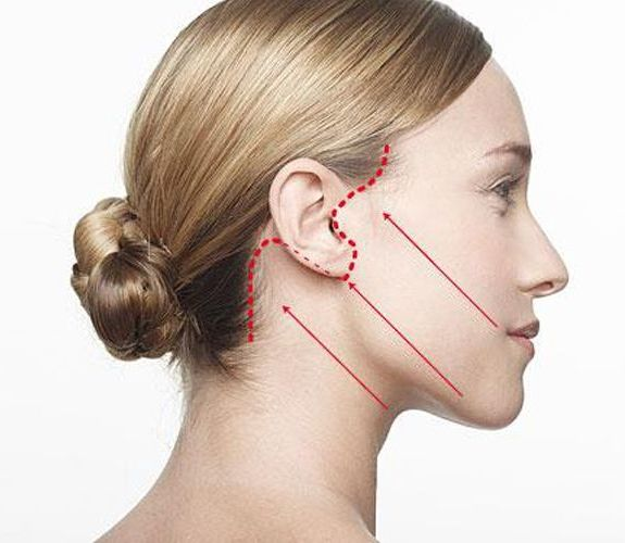 Lifting Facial: Nuestros servicios de Carpe Diem Clínicas