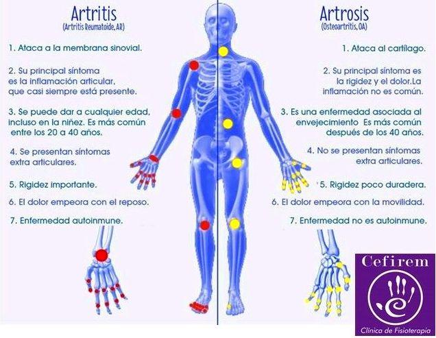 Diferencia Artritis y Artrosis