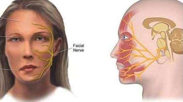 Tratamiento parálisis facial