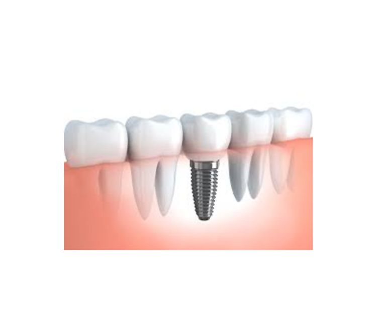 Implantes dentales en San Blas