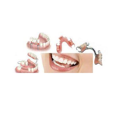 Prótesis dentales: Tratamientos de Hospital Dental de Madrid. Clínicas en San Blas y Alcorcón