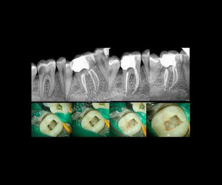 Endodoncias en Madrid