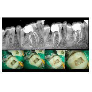 Endodoncia: Tratamientos de Hospital Dental de Madrid. Clínicas en San Blas y Alcorcón