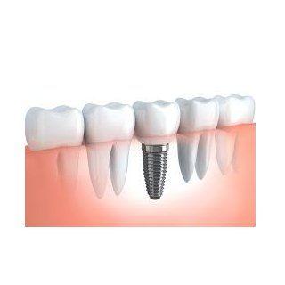Implantes dentales: Tratamientos de Hospital Dental de Madrid. Clínicas en San Blas y Alcorcón