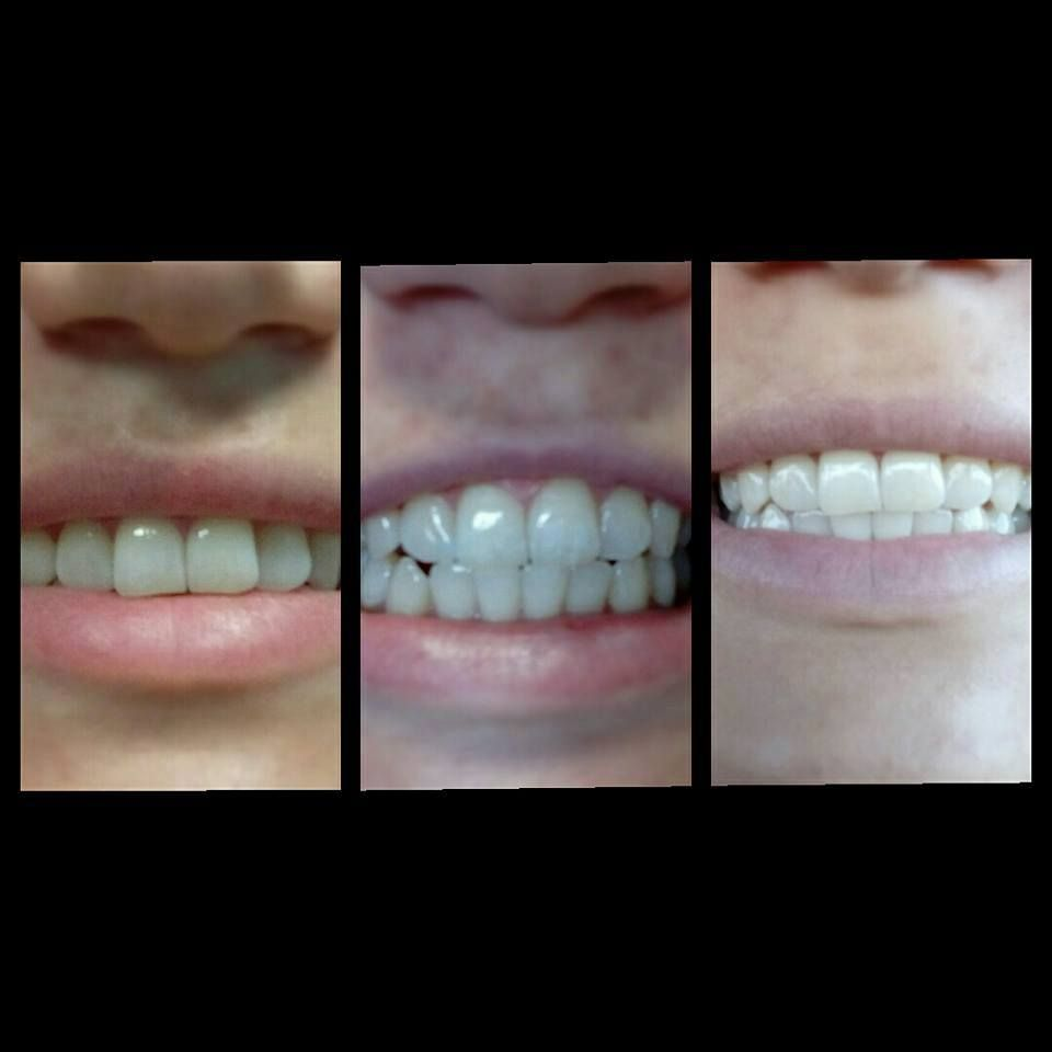 Blanqueamiento dental en  DentiVita