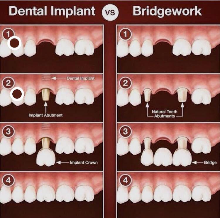 Implantes dentales en DentiVita