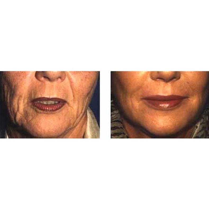 Terapia celular avanzada: Lipofilling:  de Imsei Clinic Medicina Estética