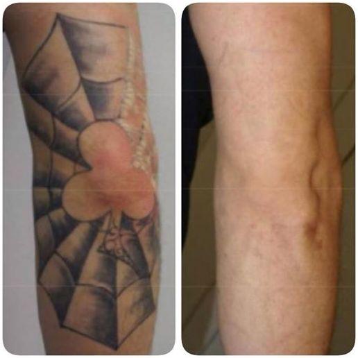Eliminación de tatuajes Madrid|Laseravant