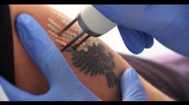 Eliminar tatuajes: Tratamientos de Láser Avant