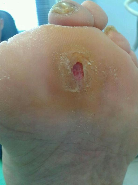Papilomas: Servicios de Clinimar Clínica Podológica y Estética. Depilación