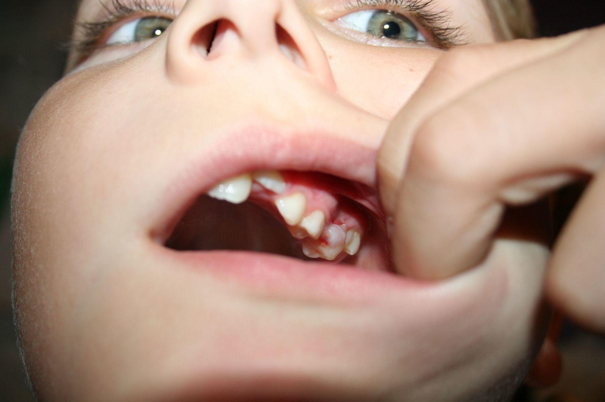 Odontología para niños