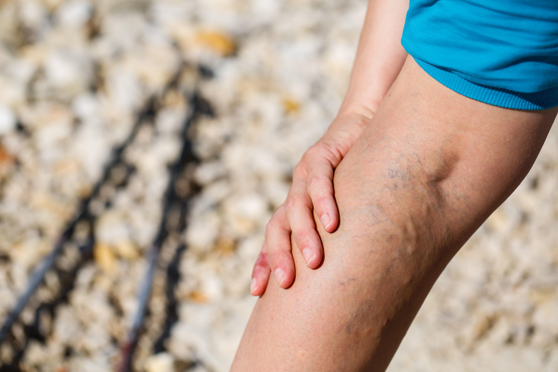 Damos la mejor solución a los dolores musculares e inflamación