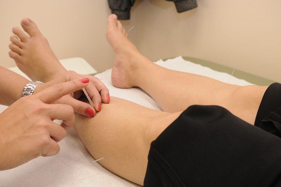 Acupuntura: Servicios de Axis Clínica De Fisioterapia