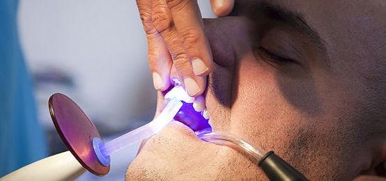 Blanqueamiento dental: Tratamientos de Clínica Dental Presencia