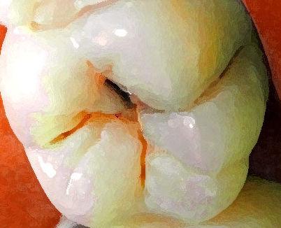 Odontología general: Servicios de Clínica Dental Alodent