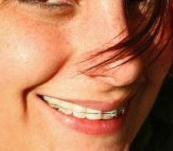Ortodoncia: Servicios de Clínica Dental Alodent