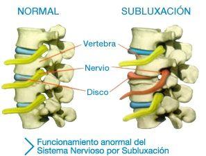 1.3 Subluxación: Servicios de Centros Valverde