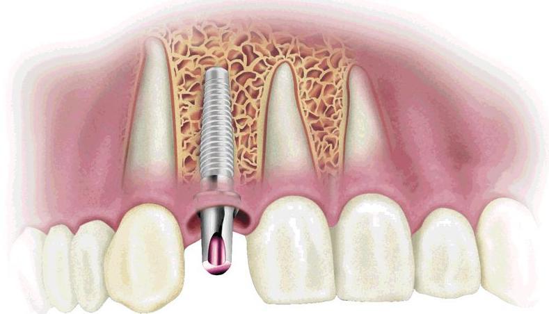 Regeneración ósea: Servicios de Clínica Dental Santiago G. Fdez. - Nespral