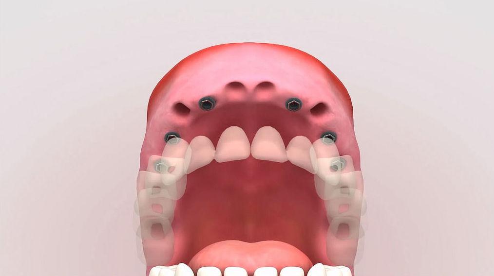 Impresiones dentales digitales en 3D: Servicios de Centro Dental Integral Mª Azucena Plata Vega