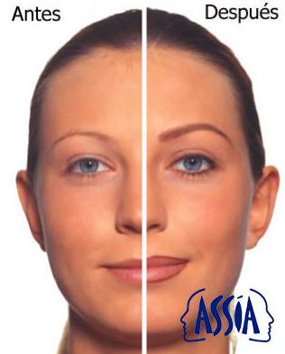 Micropigmentacion ( Realza tus facciones y optimiza la Belleza de rostro)