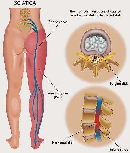 El dolor de ciática y la quiropráctica