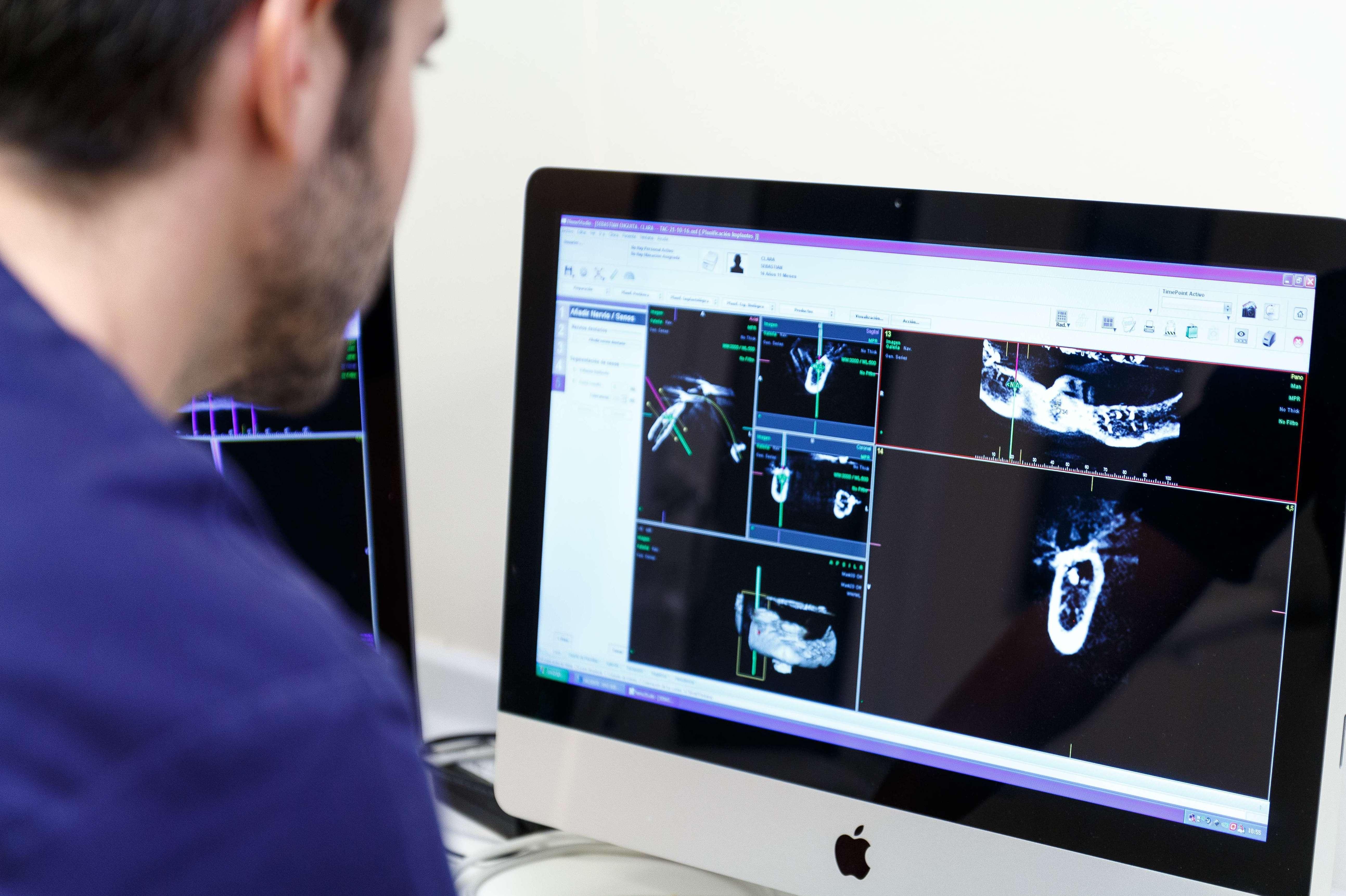 Implantología: Tratamientos de MARIANO LÓPEZ OLIVAS