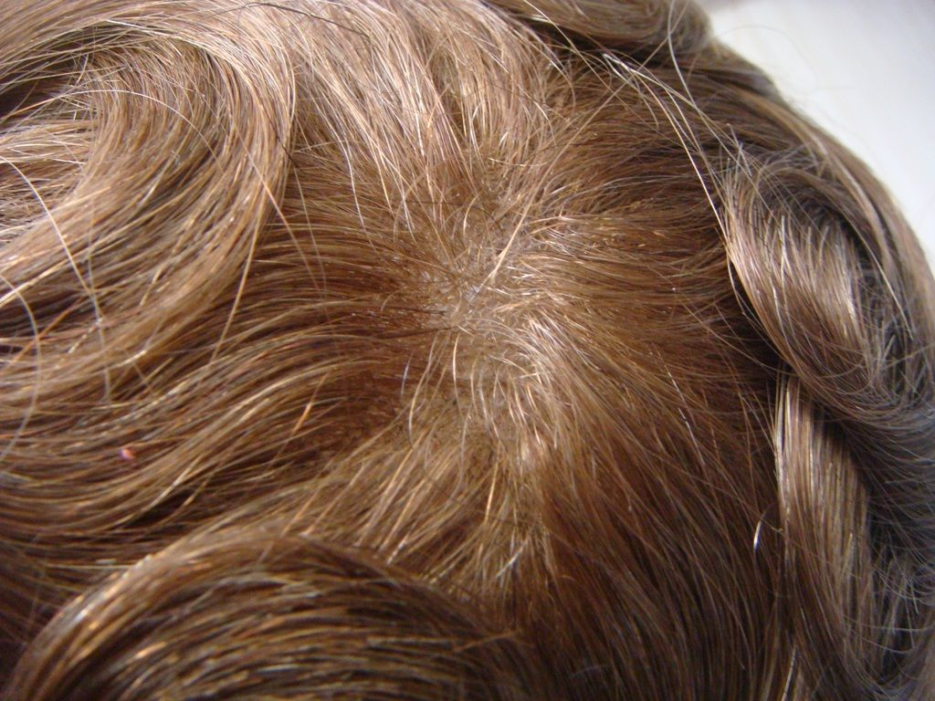Fabricante de pelucas en Murcia