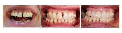 carillas dentales en un solo dia