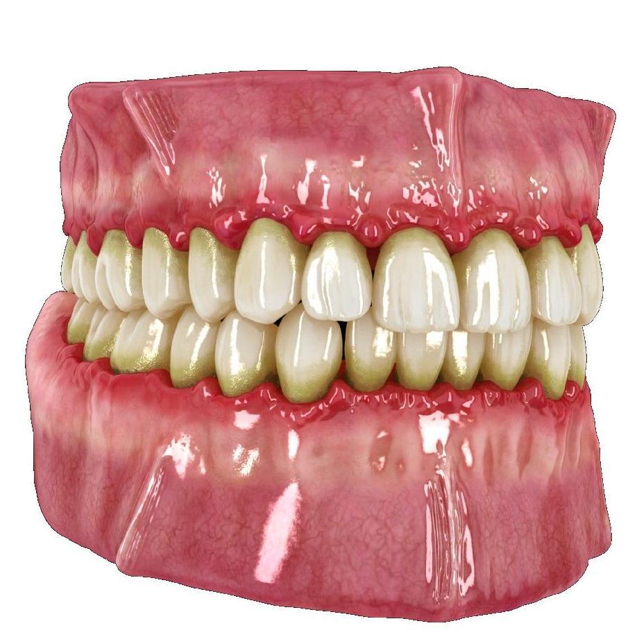 Periodoncia: Tratamientos de Clínica Dental Drs. Canga