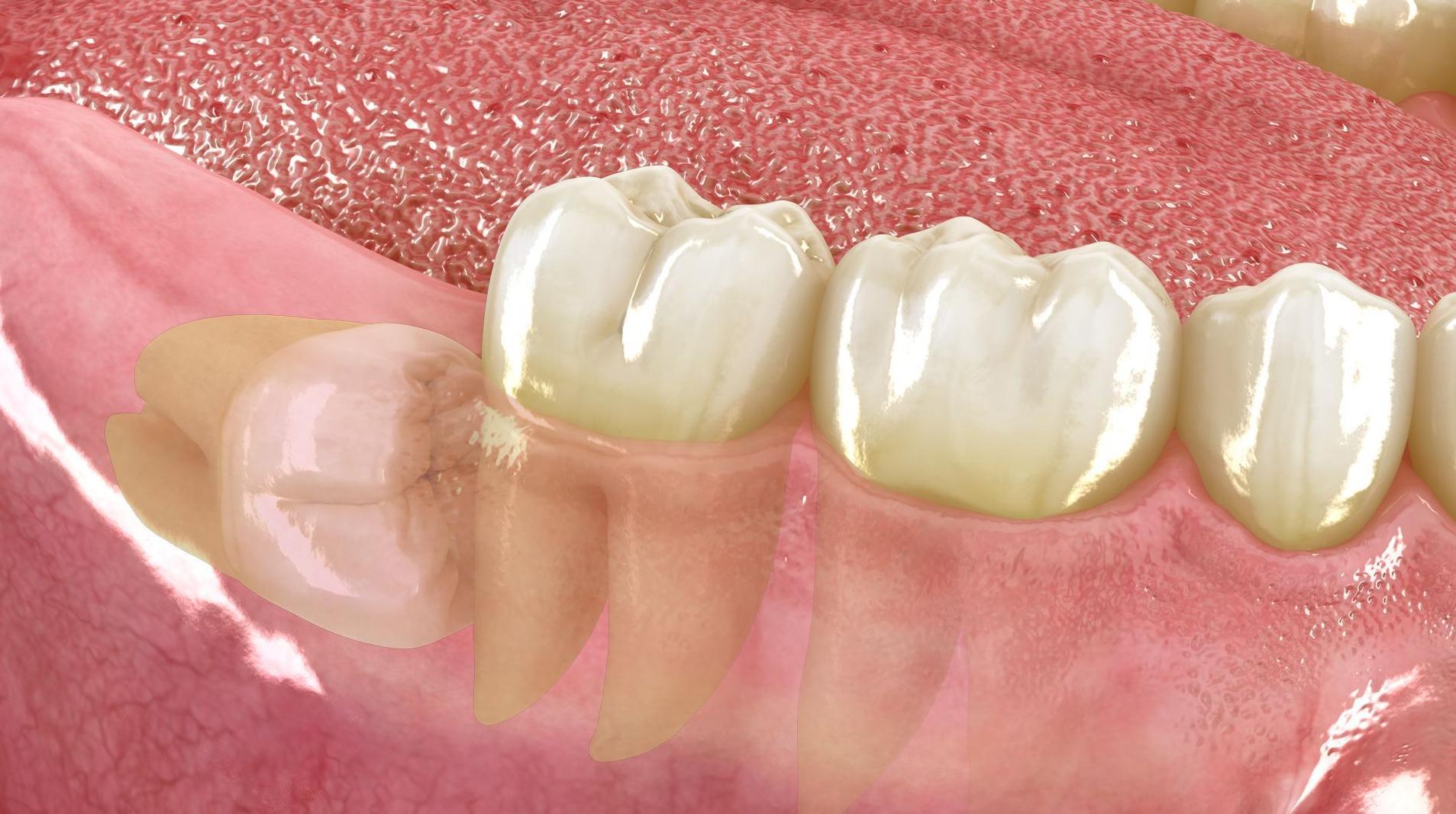 Cirugía oral: Tratamientos de Clínica Dental Drs. Canga