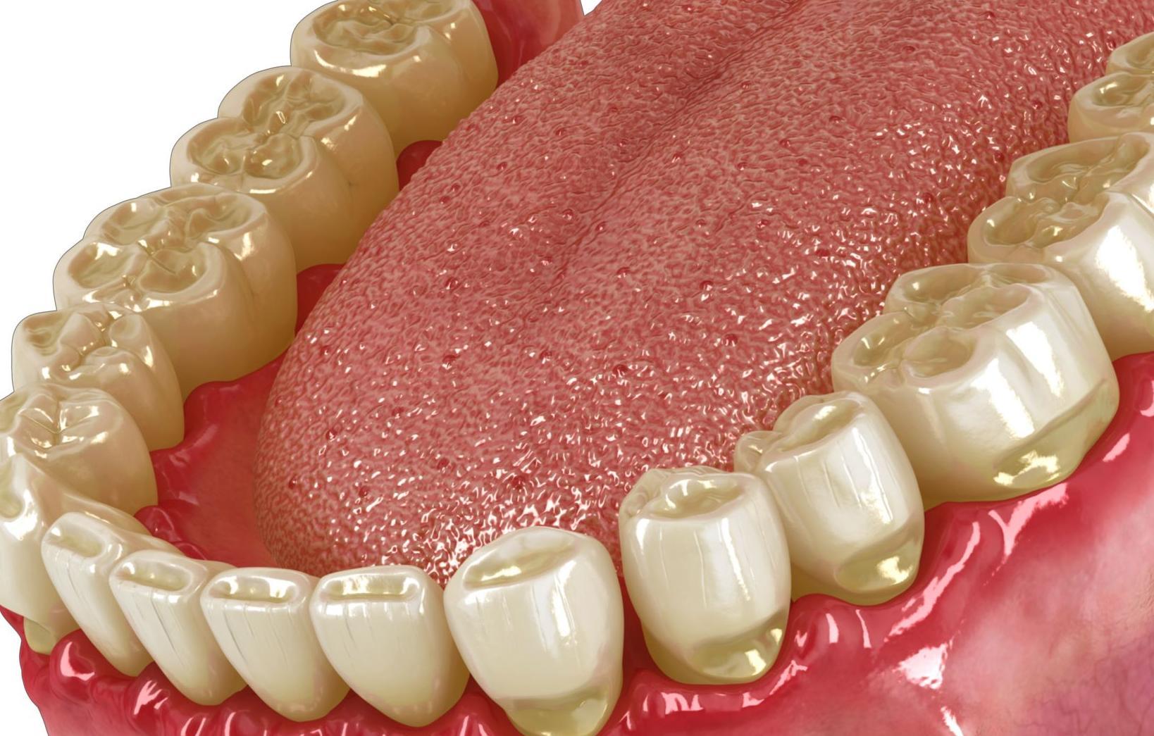 Bruxismo: Tratamientos de Clínica Dental Drs. Canga