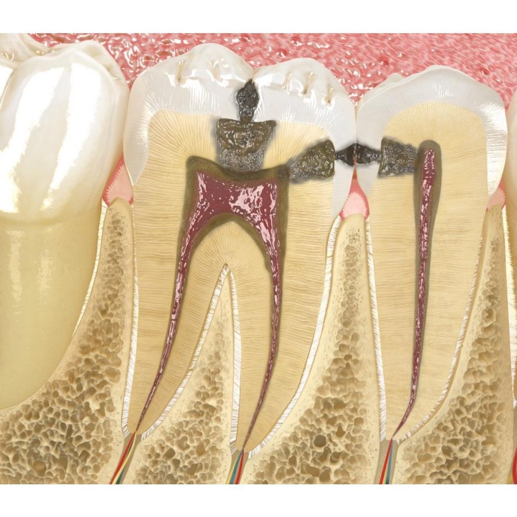 Endodoncia: Tratamientos de Clínica Dental Drs. Canga