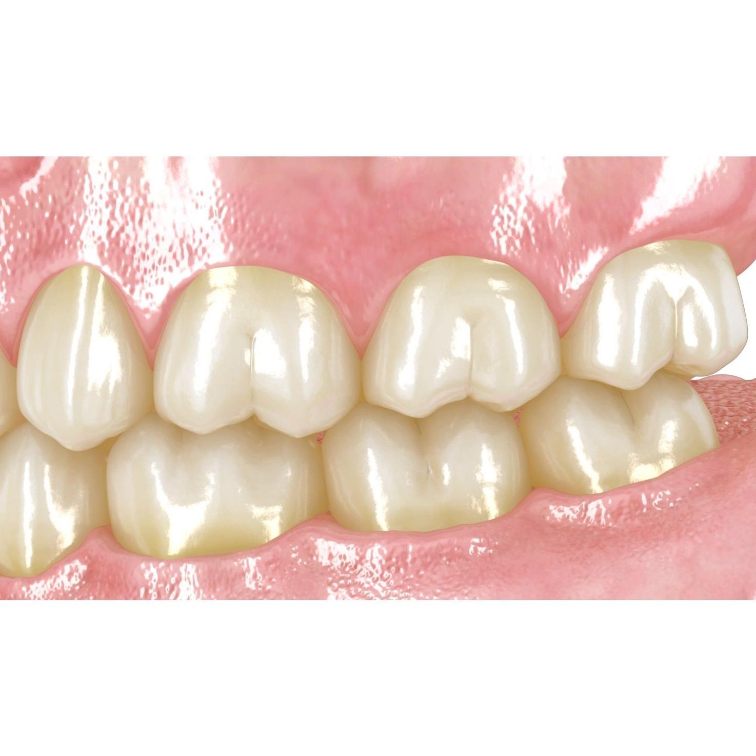 Odontología conservadora: Tratamientos de Clínica Dental Drs. Canga