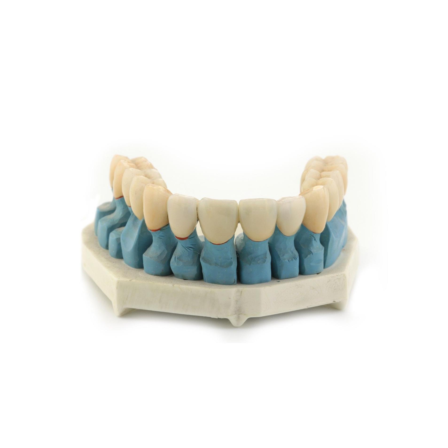 Prótesis: Tratamientos de Clínica Dental Drs. Canga