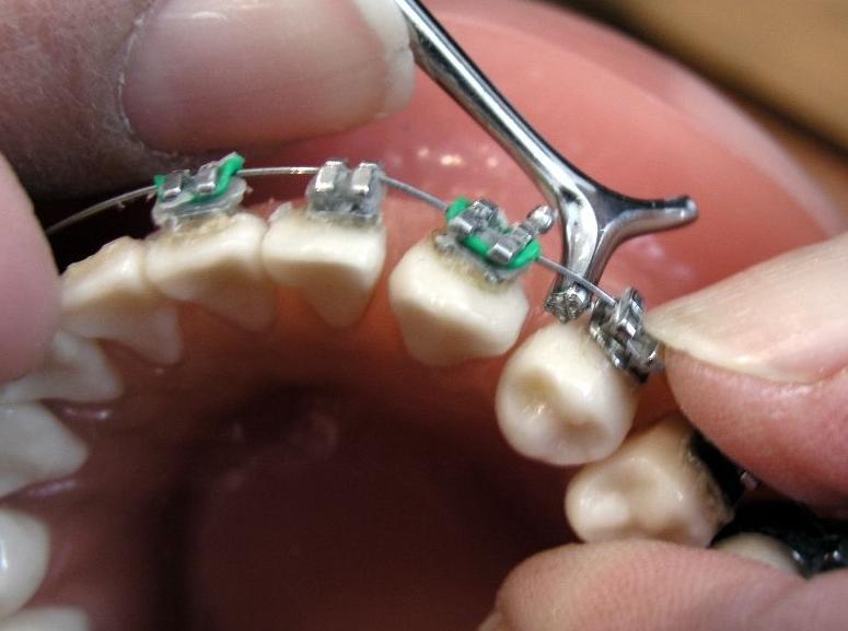 Brackets estándar y estéticos: Odontología y Terapias de Centre Odontològic Sant Quirze