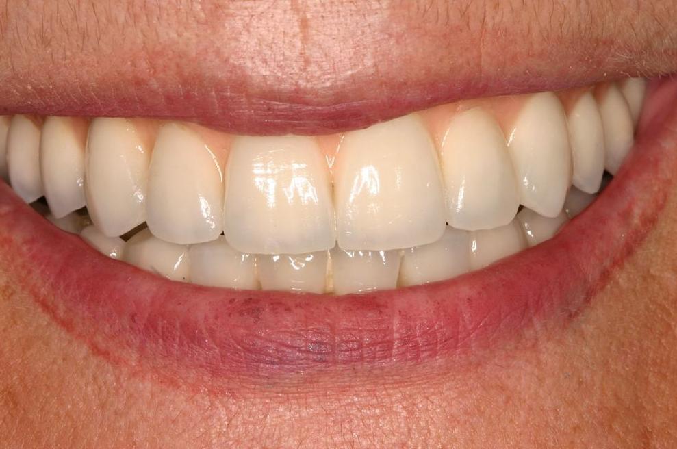 Blanqueamiento: Odontología y Terapias de Centre Odontològic Sant Quirze